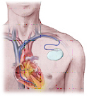 Implantable cardiac defibrillator